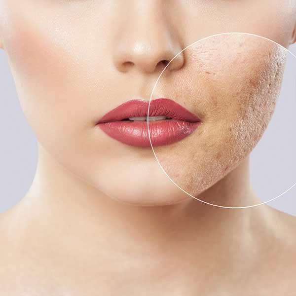Venus Versa Acne Treatment