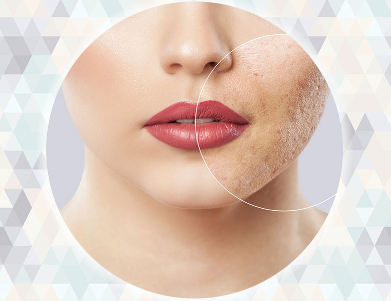 Laser Acne Scar Treatment