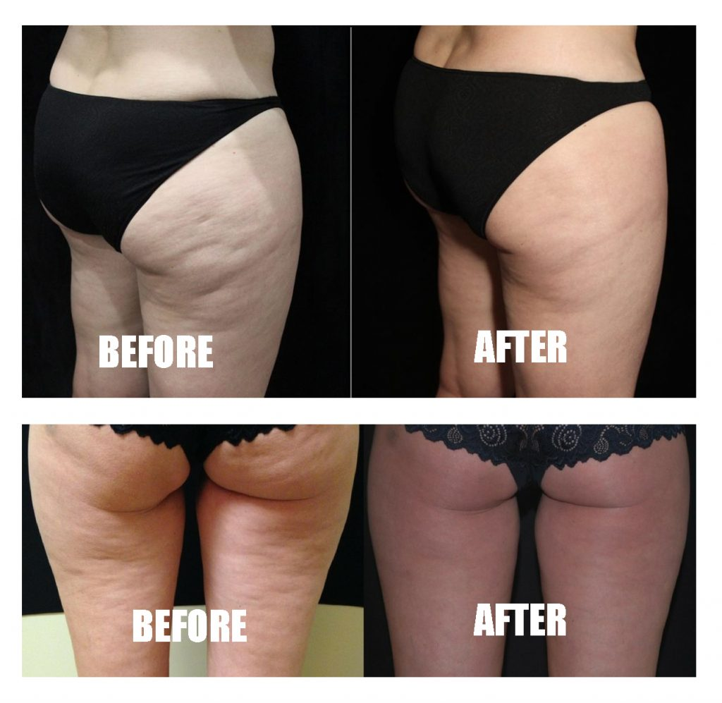 BTL Cellutone before and after